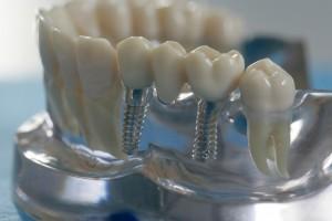 """Steht eine Behandlung mit Zahnimplantaten an, so sollten Raucher etwa zwei bis drei Wochen vor dem OP-Termin sowie fünf bis sechs Wochen danach auf Zigaretten verzichten, da das Nikotin die Blutzirkulation hemmt und so die Wundheilung und die Einheilung der Implantate erschwert oder sogar verhindern kann. Studien haben gezeigt, dass Zahnimplantate bei Rauchern eine dreimal so hohe Komplikations- und Misserfolgsrate wie Nichtraucher aufweisen.  Die Verwendung dieses Bildes ist nur für redaktionelle Zwecke und ausschließlich in Bezug auf das Thema Zahnmedizin gestattet. Die Bearbeitung des Bildes ist nicht erlaubt, mit Ausnahme der Verkleinerung oder Vergrößerung sowie der technischen Aufbereitung zum Zweck der optimalen Vervielfältigung. Die Weitergabe dieses Bildes an Dritte und insbesondere der honorarpflichtige Vertrieb/die Speicherung in Bilddatenbanken ist untersagt. Der Abdruck ist ausschließlich unter Nennung der Quellenangabe: """"proDente e.V."""" honorarfrei. . .Eine reprofähige jpg-Datei ist unter www.prodente.de im Pressezentrum abrufbar.  Erzeugt mit Caption Writer II."""
